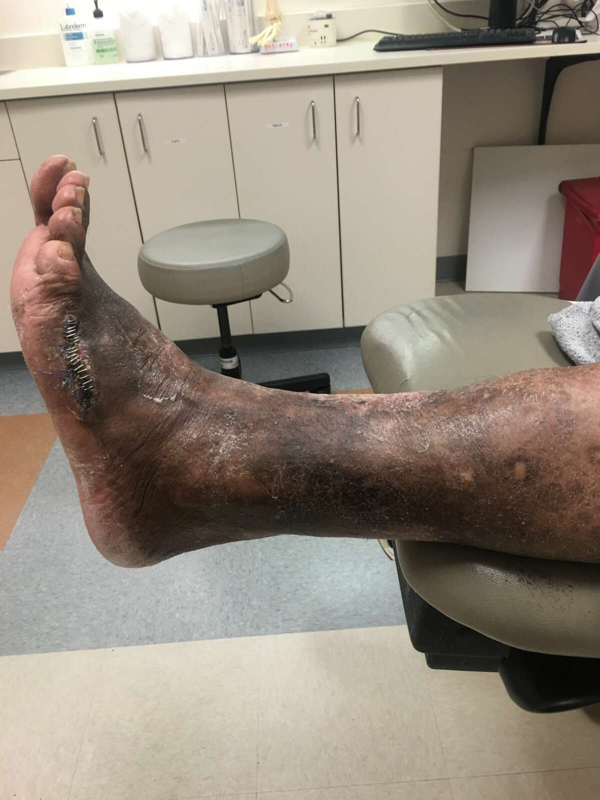 Isaac Rodriguez's foot at various stages of deteriorating condition.