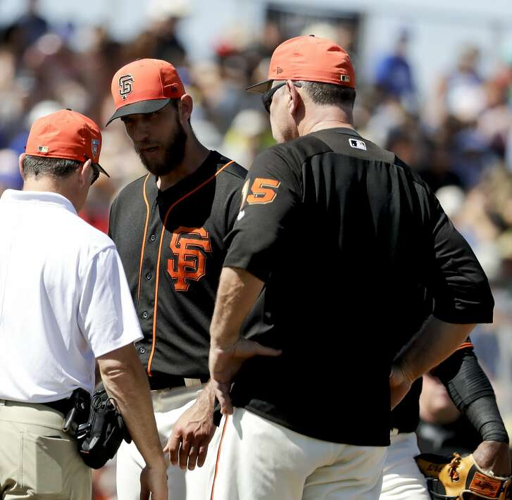 San Francisco Giants starting pitcher Madison Bumgarner, center, is looked over by manager Bruce Bochy, right, and a trainer after getting hit in the arm by a batted ball during the third inning of a spring baseball game against the Kansas City Royals in Scottsdale, Ariz., Friday, March 23, 2018. (AP Photo/Chris Carlson)
