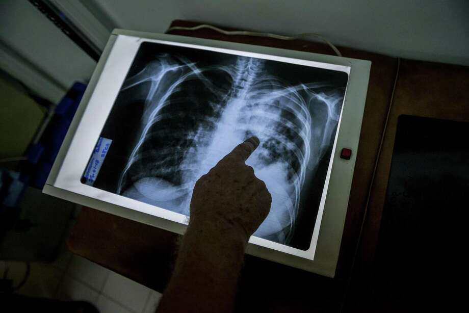 Dr. Jacobus de Waard, the director of the tuberculosis laboratory at the Institute of Biomedicine, examines the lung x-ray of a tuberculosis patient, in Caracas, Venezuela, Feb. 15, 2018. Tuberculosis, which until recently seemed to be under control in Venezuela, is making an aggressive comeback in the nation, overwhelming its broken health care system. (Meridith Kohut/The New York Times) Photo: MERIDITH KOHUT, STR / NYT / NYTNS
