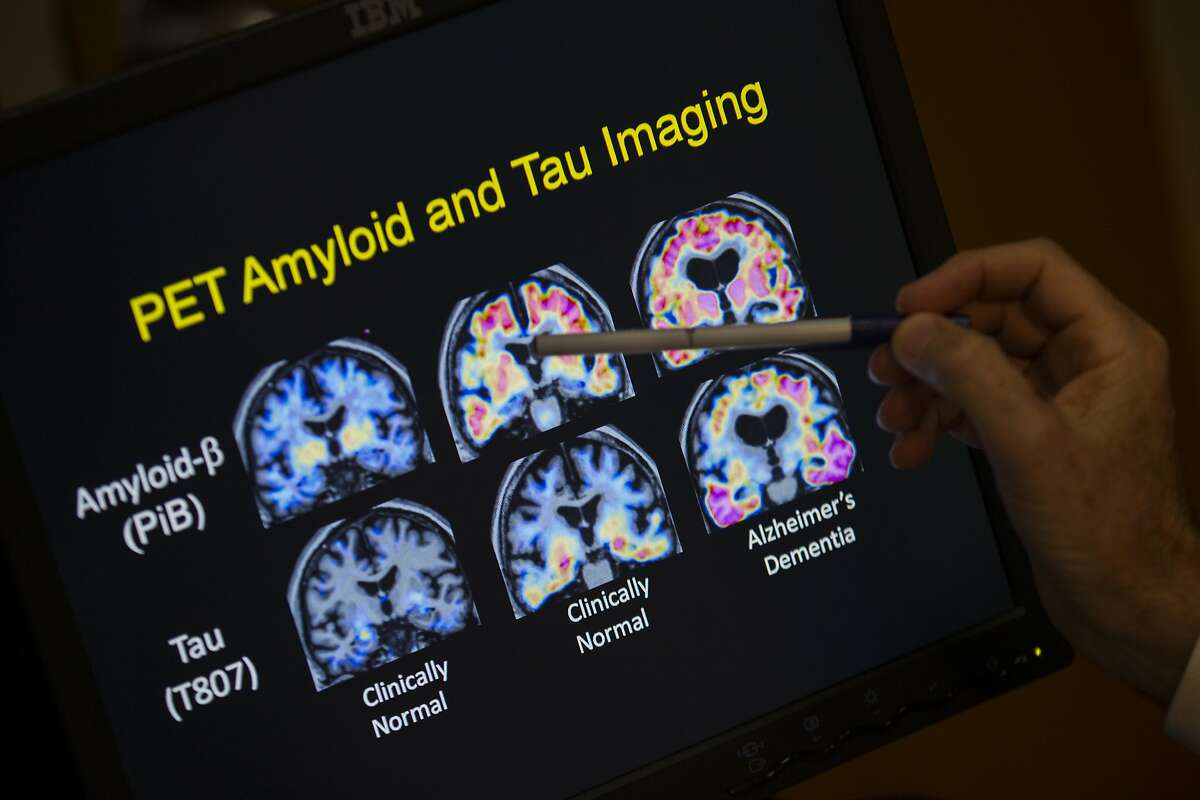 In this May 19, 2015, file photo, R. Scott Turner, Professor of Neurology and Director of the Memory Disorder Center at Georgetown University Hospital, points to PET scan results that are part of a study on Alzheimer's disease at Georgetown University Hospital in Washington.