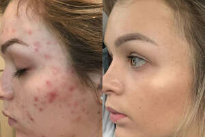 Before and after photos of a Houston fitness blogger show her nine-month acne transformation after she discovered the right skincare regimen for her face.