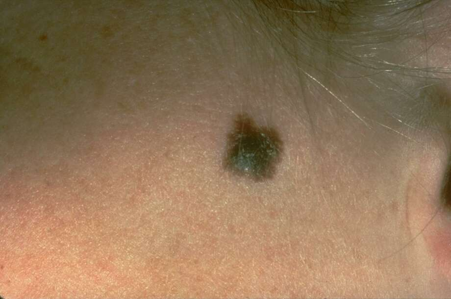 This photo provided by the American Academy of Dermatology shows a typical presentation of a suspicious mole that eventually was diagnosed as melanoma. A study, published in the May issue of the Journal of the American Academy of Dermatology, researchers found that men with a history of nonmelanoma skin cancer were less likely to die of melanoma than those without a history.(American Academy of Dermatology via AP) MANDATORY CREDIT Photo: / Associated Press / American Academy of Dermatology