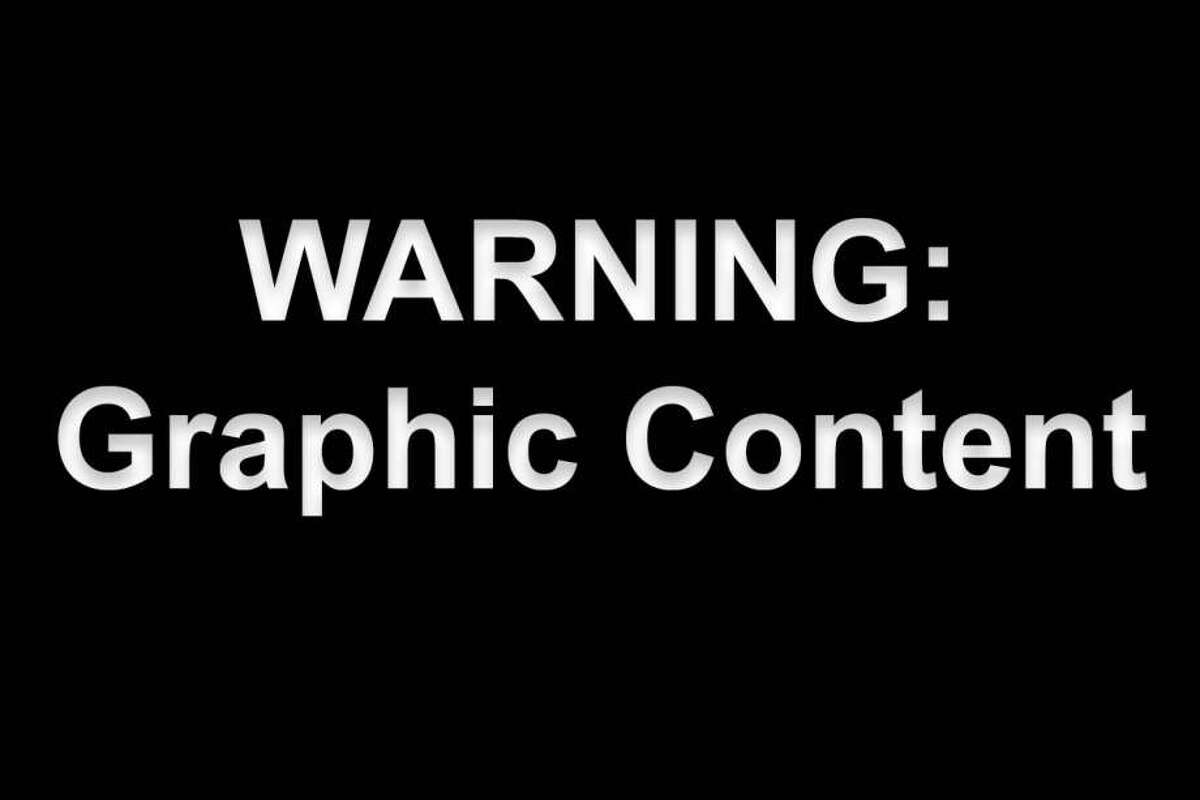 The following photos contain graphic images.