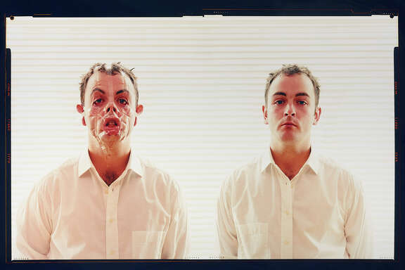"Douglas Gordon transforms his face with tape in ""Monster Reborn"" (2002) at the Gagosian Gallery in San Francisco."