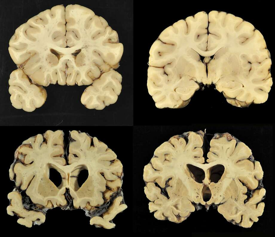 This combination of photos provided by Boston University shows sections from a normal brain, top, and from the brain of former University of Texas football player Greg Ploetz, bottom, in stage IV of chronic traumatic encephalopathy. According to a report released on Tuesday, July 25, 2017 by the Journal of the American Medical Association, research on 202 former football players found evidence of a brain disease linked to repeated head blows in nearly all of them, from athletes in the National Football League, college and even high school. (Dr. Ann McKee/BU via AP) Photo: Ann McKee, MD, AP