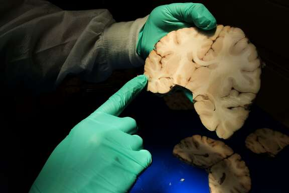 A Boston researcher analyzes brain tissue for a disease that has been found in some NFL players who died or committed suicide.
