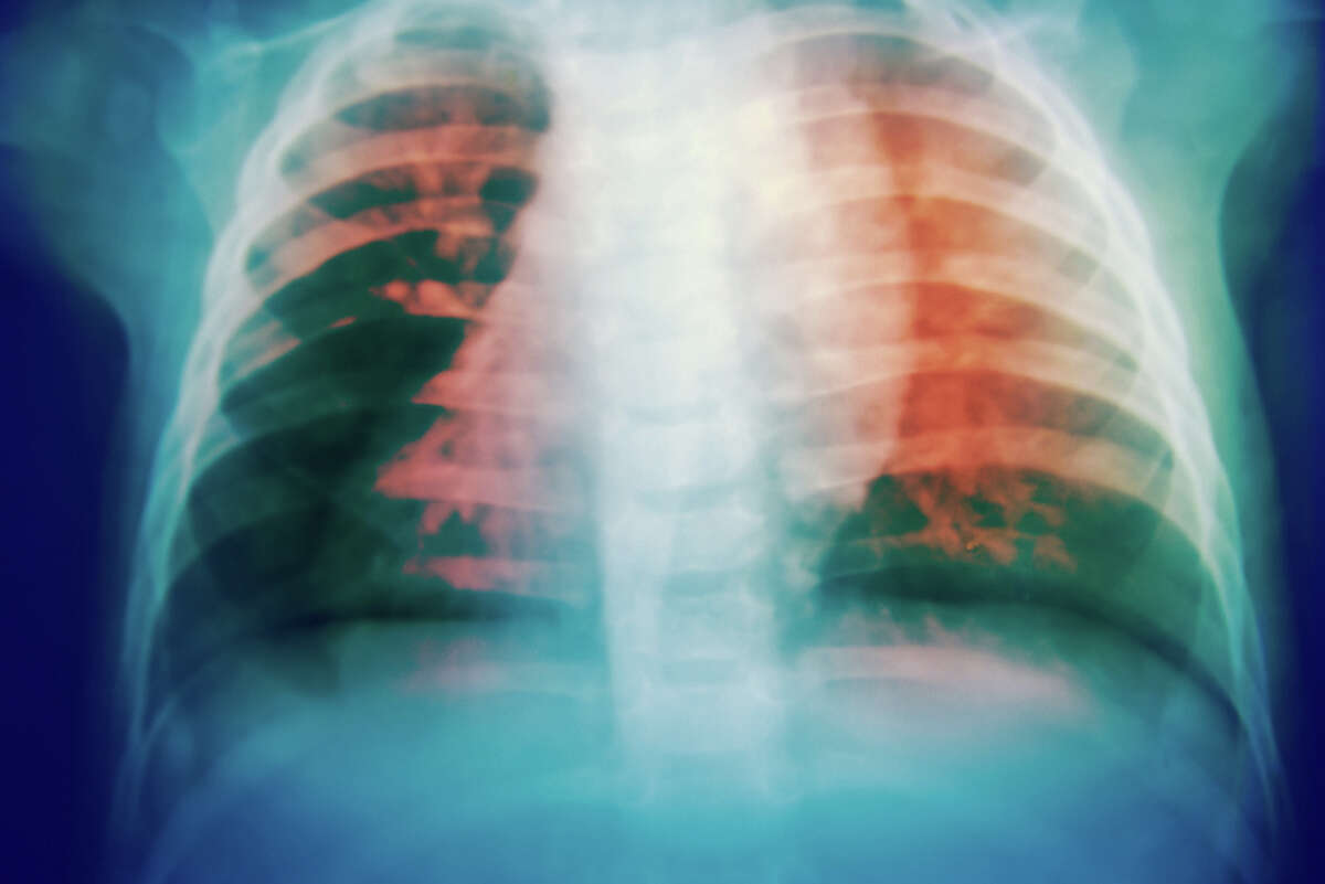 Tuberculosis is spread when a person with an active infection coughs or sneezes, and another person breathes in the germs. Most people are infected by someone they spend a lot of time with, like a family member or coworker.