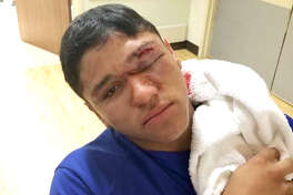 Evadale Rebels starting pitcher Alex Valencia was transported to Huntsville Memorial Hospital after being struck above the left eye by a line drive in the first inning of Friday's playoff game with Thorndale. (Photo provided by Arnold Valencia)