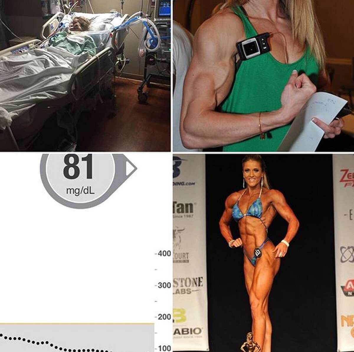 Lauren Howe, 31, is a San Antonio resident with Type 1 diabetes who is making strides in her bodybuilding goals.