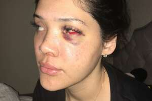 Krista Cooper, 24, was hospitalized after a fight with her former fiancée, San Antonio police officer Justin Ayars. She said Ayars smashed her face with a rock. San Antonio police still are investigating the May 26 incident nearly weeks months after it occurred.