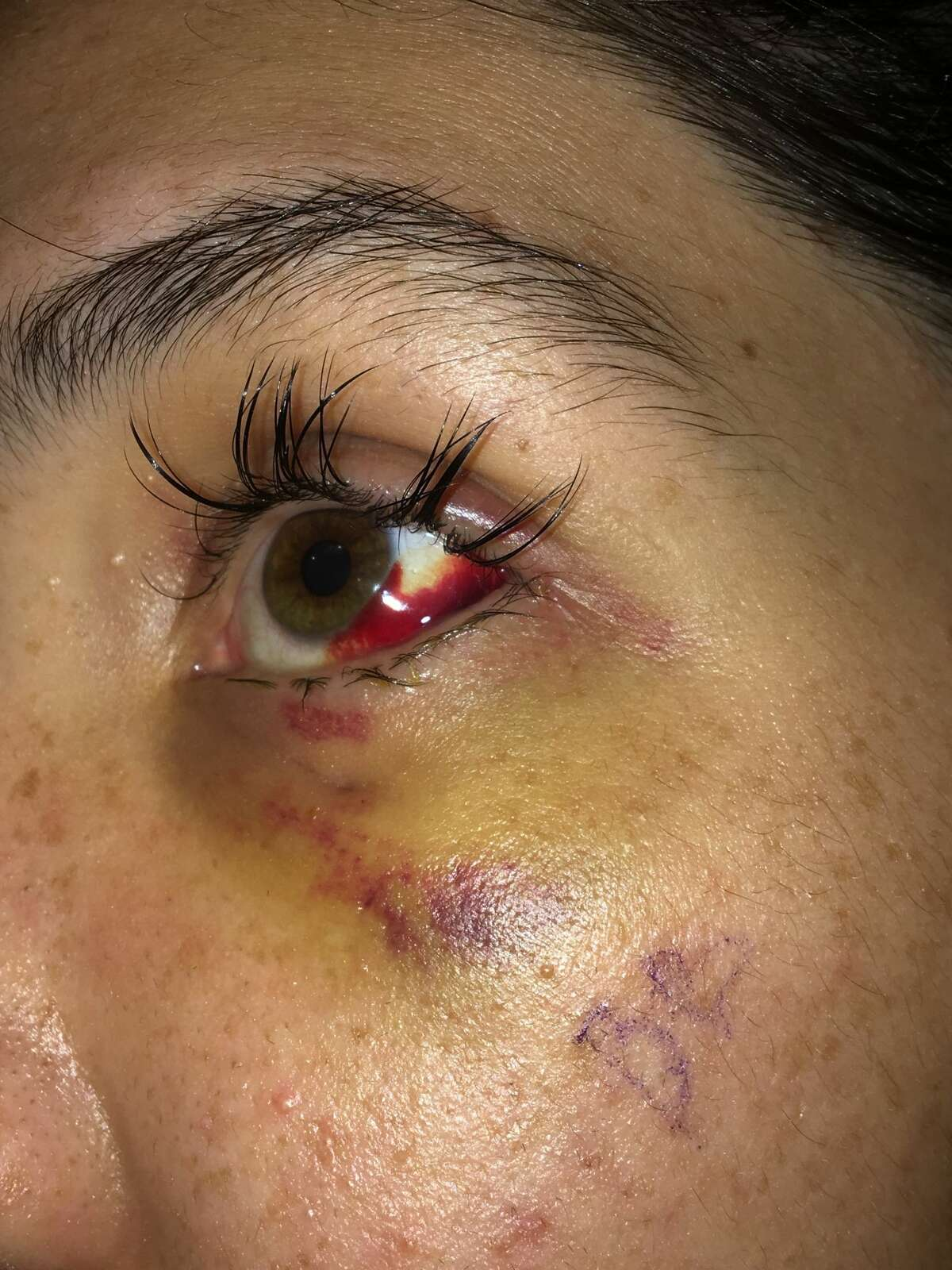 Krista Cooper, 24, was hospitalized after a fight with her former fiancée, San Antonio police officer Justin Ayars. She said Ayars smashed her face with a rock. San Antonio police still are investigating the May 26 incident nearly three weeks after it occurred.