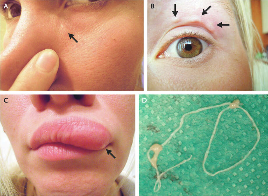 Moving bumps on a woman's face turned out to be a migrating parasite, according to an article published Tuesday in the New England Journal of Medicine. Photo: The New England Journal Of Medicine ©2018