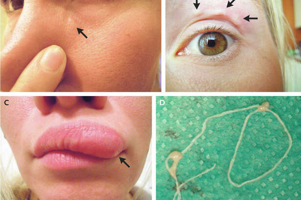 Moving bumps on a woman's face turned out to be a migrating parasite, according to an article published Tuesday in the New England Journal of Medicine.