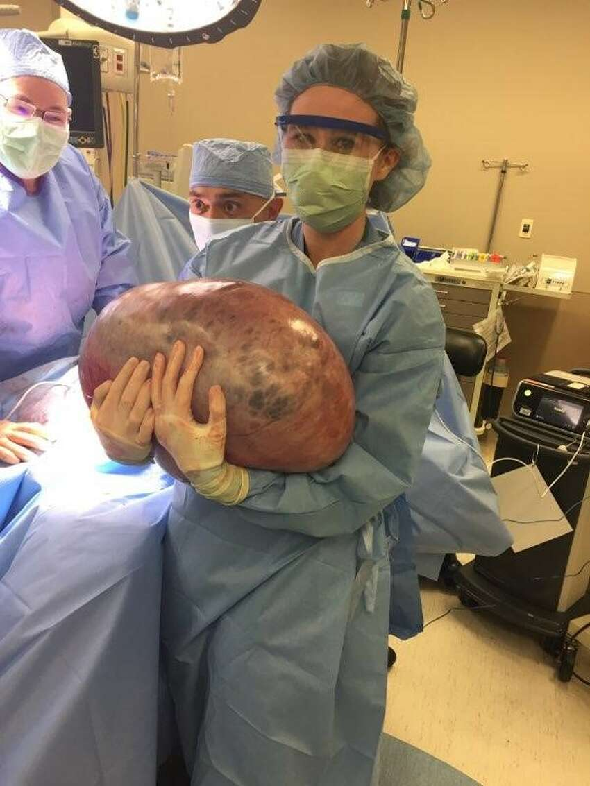 Doctors at Jackson Hospital in Montgomery removed a 50-pound tumor from an Alabama woman's ovary in May 2018.