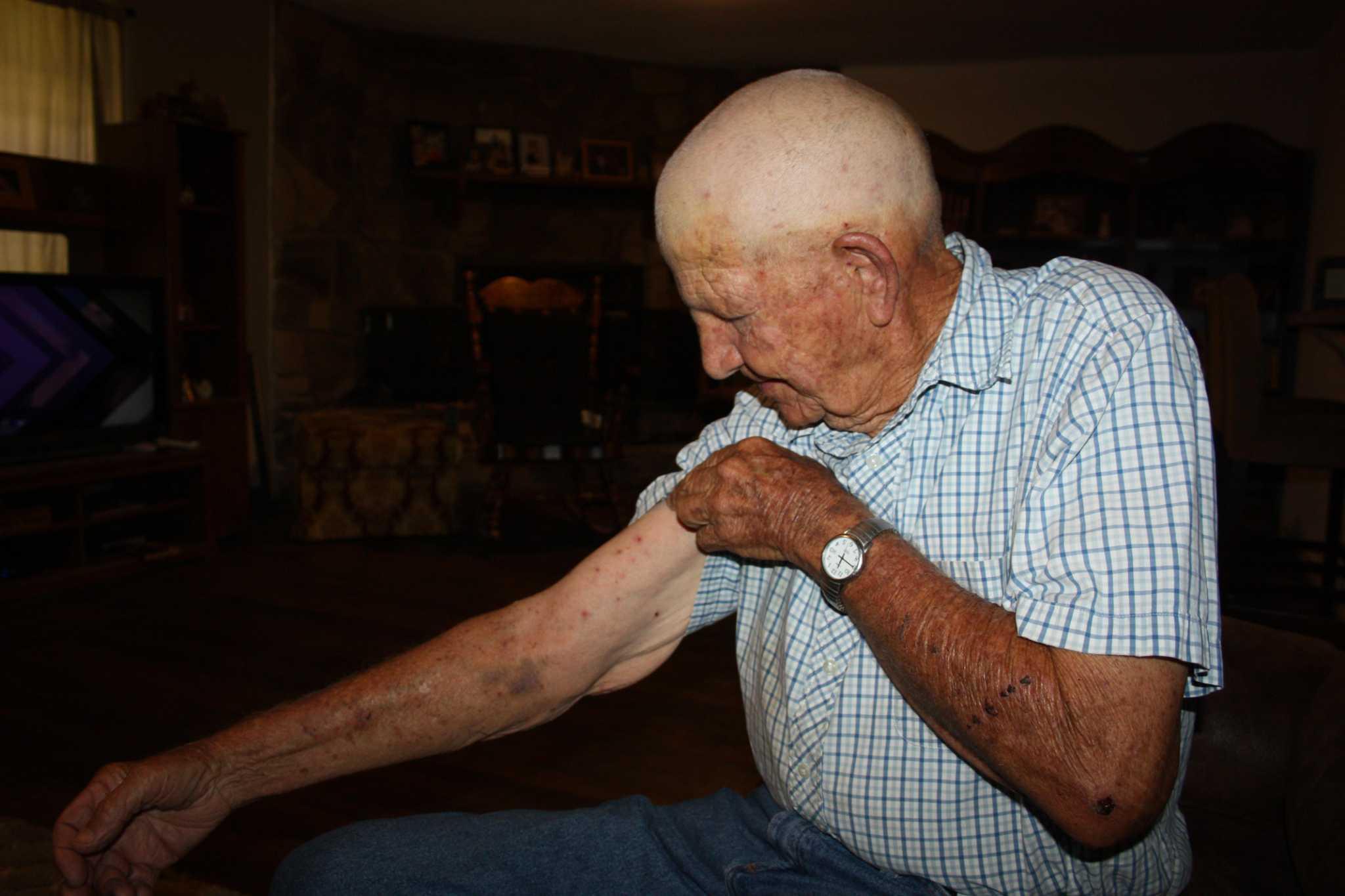 Tarkington man survives aggressive bee attack - Houston Chronicle