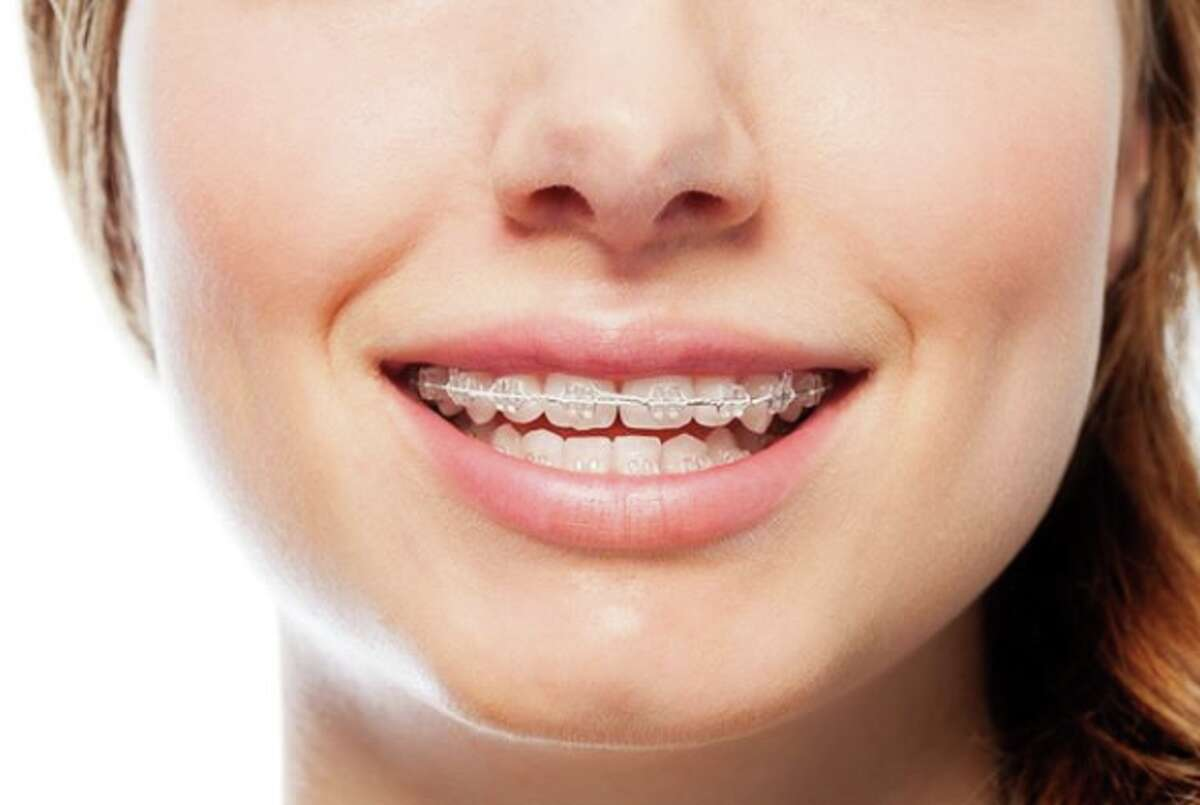Where metal braces installed in a doctor's office were once the only way to correct misaligned teeth, a new method that uses removable clear aligners can eliminate a visit to an orthodontist and save patients thousands of dollars.