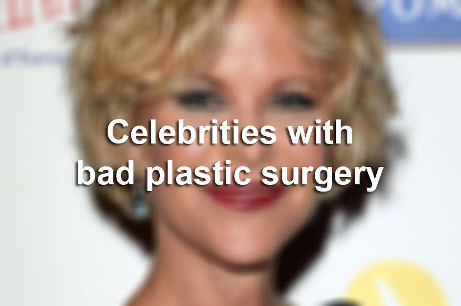 Celebrities with bad plastic surgery. Photo: Getty Images