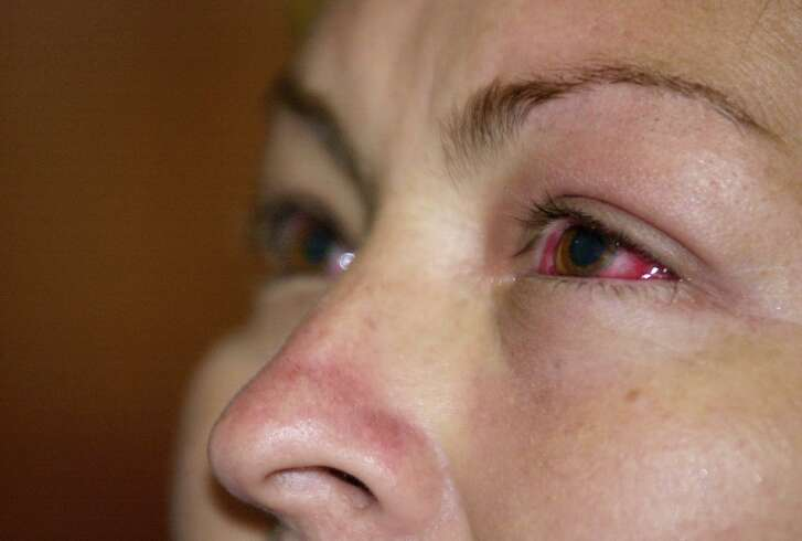 Houston has seen an uptick in cases of pink eye, or conjunctivitis, this summer.