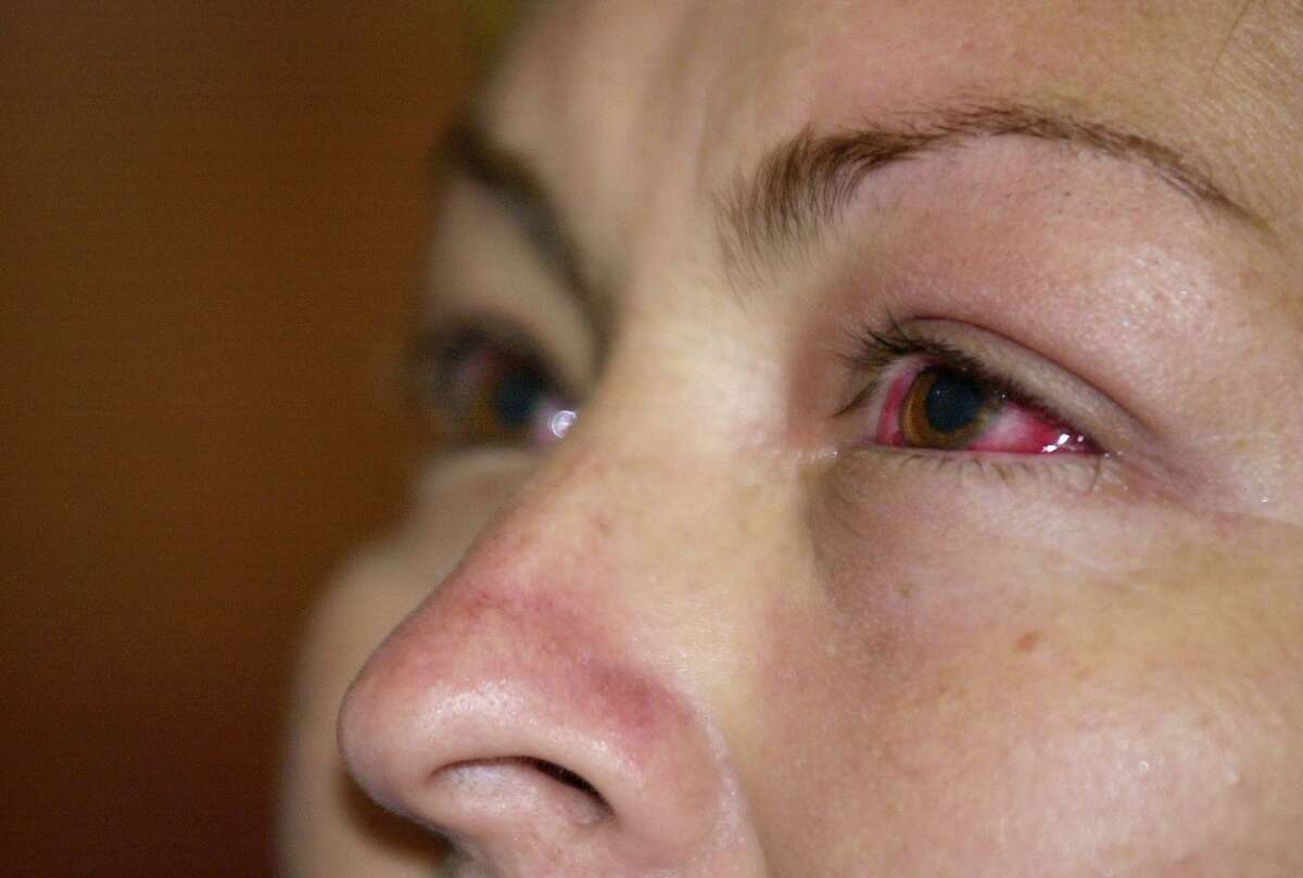 """Delmi Sarai Ortiz, 38, waits to be helped by a doctor for Bacterial Conjunctivitis, or """"pink eye"""", at the Monserrat Health Clinic in San Salvador, El Salvador on Friday, Aug. 8, 2003. According to the Salvadoran Health Ministry, there have been nine cases of Acute hemorrhagic conjunctivitis (AHC) and approximately 32,787 cases of Bacterial Conjunctivitis in the country. (AP Photo/Victor Ruiz Caballero)"""