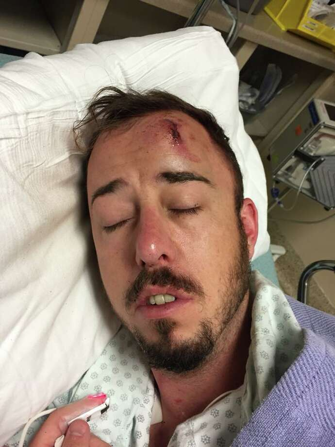 Christopher Bradford said three men attacked him as he was leaving a gay bar in Montrose early Wednesday.  Continue clicking to see notable Texas crimes in 2018. Photo: Courtesy Of Christopher Bradford