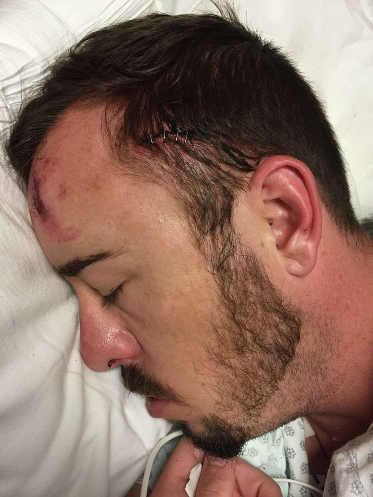 Christopher Bradford said three men attacked him as he was leaving a gay bar in Montrose early Wednesday.