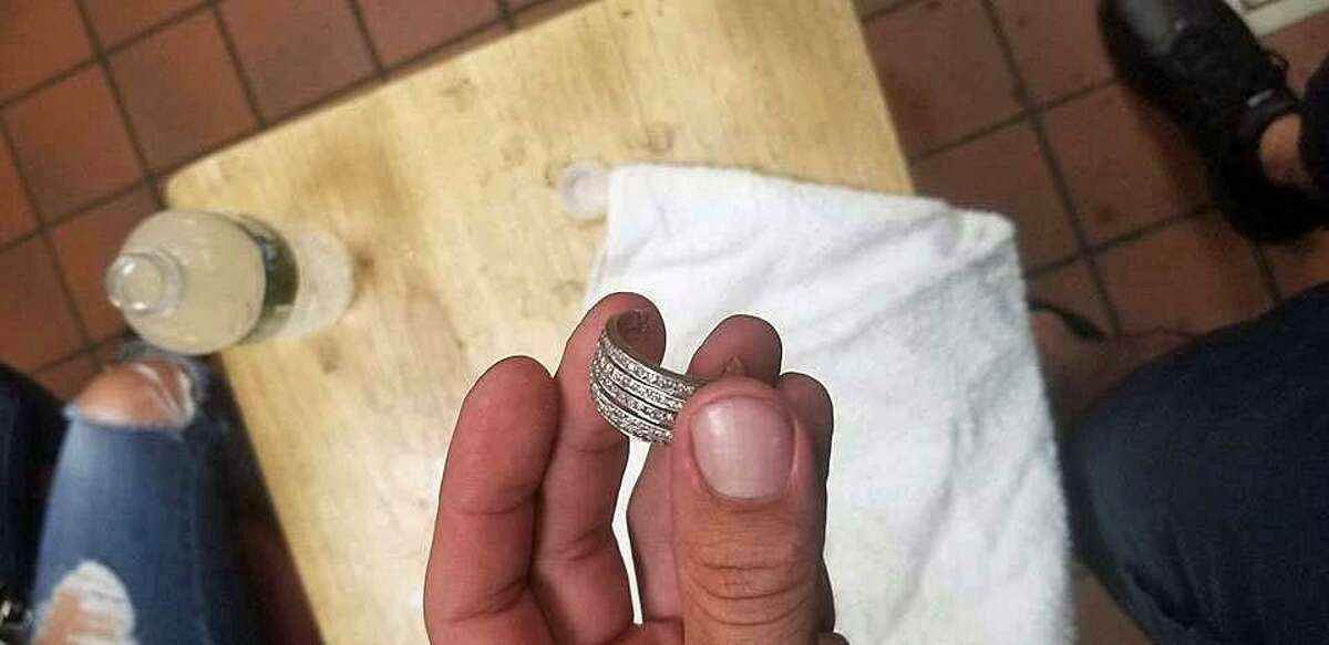 Bridgeport, Conn., firefighters help remove a ring from a woman's finger.