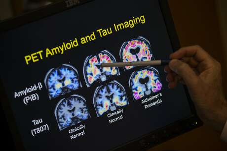 FILE- In this May 19, 2015, file photo, R. Scott Turner, Professor of Neurology and Director of the Memory Disorder Center at Georgetown University Hospital, points to PET scan results that are part of a study on Alzheimer's disease at Georgetown University Hospital in Washington. Government and other scientists are proposing a new way to define Alzheimer's disease. basing it on  biological signs, such as brain changes, rather than memory loss and other symptoms of dementia that are used now. (AP Photo/Evan Vucci, File)