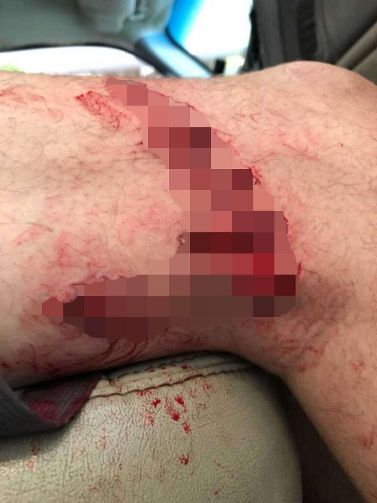 A 42-year old man was bitten by a shark near Crystal Beach on Thursday, August 9, 2018.