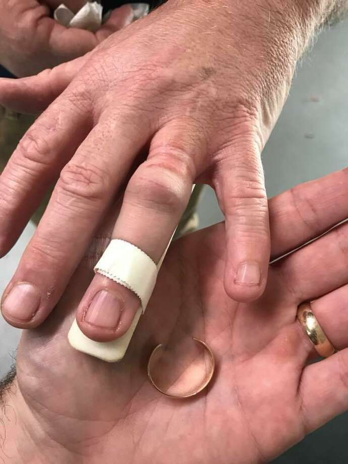 "Trumbull firefighters used new ""man vs. machine"" equipment to save a man from a wedding ring that was cutting off circulation to his finger. Photo: Trumbull Fire Department"