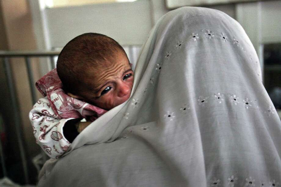 An Afghan women holds her daughter who is suffering from malnutrition at the Indira Ghandi children's hospital, in Kabul. Infant and maternal mortality, along with chronic child malnutrition, are among Afghanistan's most dire health challenges. Photo: RODRIGO ABD / AP / AP