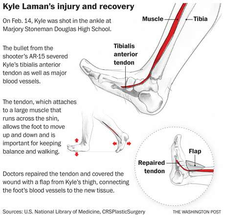 Parkland shooting survivor injury tendon recovery anterior tibialis tendon Photo: Washington Post