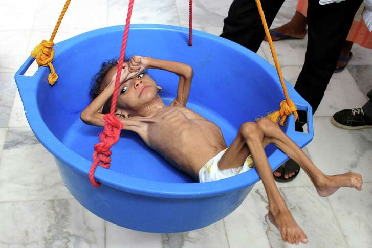 TOPSHOT - A Yemeni child suffering from malnutrition is weighed at a hospital in the northern district of Abs, in Yemen's Hajjah province on August 18, 2018. (Photo by ESSA AHMED / AFP)ESSA AHMED/AFP/Getty Images