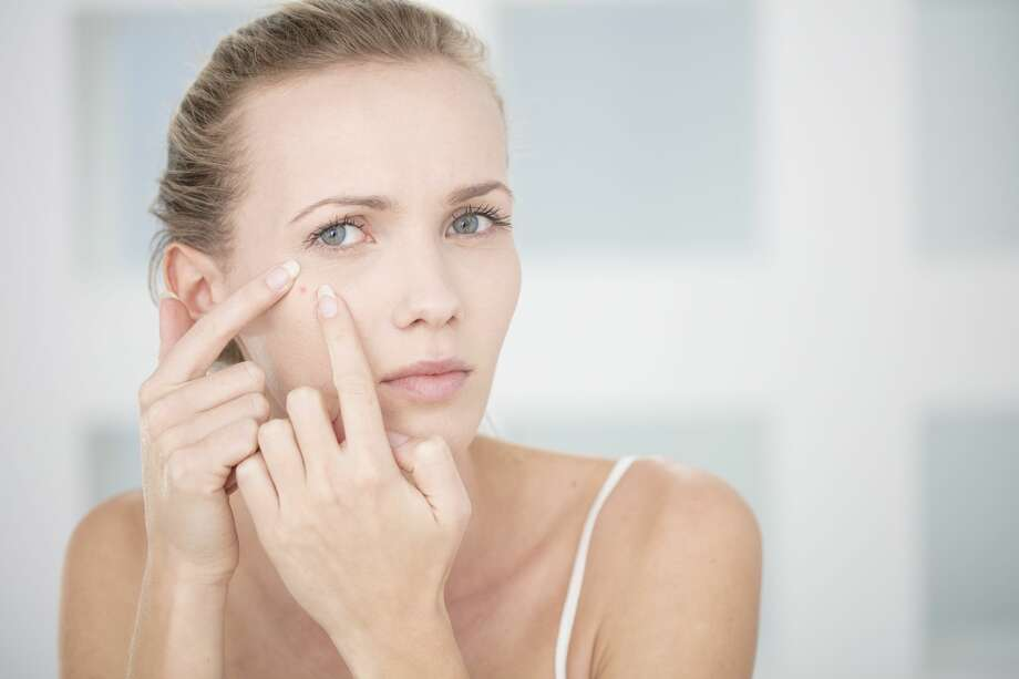 Scientists at the University of California, San Diego say they are one step closer to developing an acne vaccine. Photo: Zero Creatives/Getty Images/Image Source