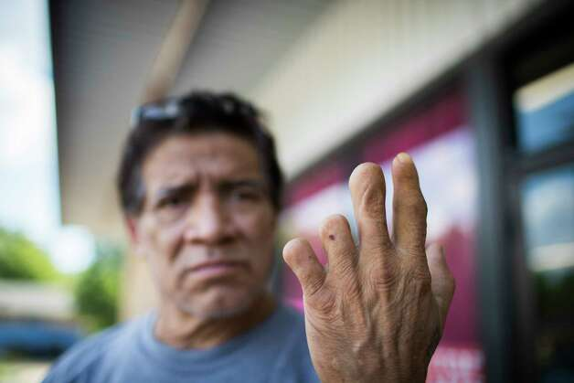 Miguel Oliva, 63, shows the fingers he lost while working at a manufacturing plant that makes wooden pallets. Oliva was one of the workers detained in the Load Trail raid. Photo: Marie D. De Jesús, Staff Photographer / © 2018 Houston Chronicle