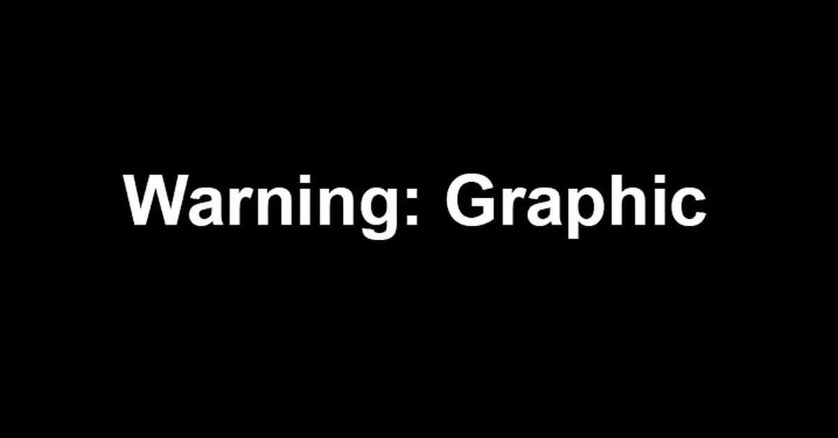 Warning : Graphic