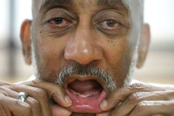 "David Ford, an inmate at the Huntsville Unit, has had trouble getting dentures while in prison. ""You ain't gonna see nothin,"" he said while showing his toothless smile Friday, Sept. 14, 2018, in Huntsville."