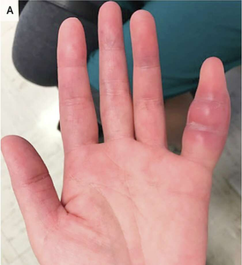 A 42-year-old woman who sought treatment after a week of swelling and discomfort in her left pinky finger was discovered to be infected with Mycobacterium tuberculosis. Photo: New England Journal Of Medicine