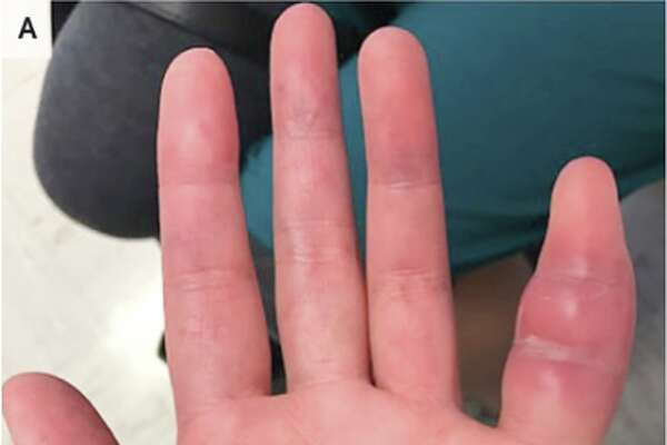 A 42-year-old woman who sought treatment after a week of swelling and discomfort in her left pinky finger was discovered to be infected with Mycobacterium tuberculosis.