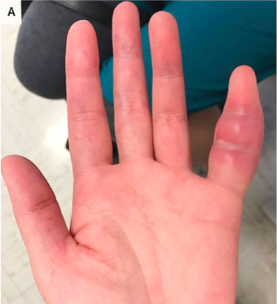 Woman S Swollen Pinky Finger Was Rare Sign Of Tuberculosis Ucsf