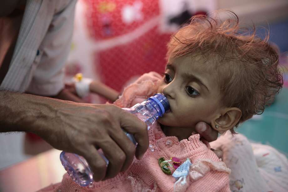 A father gives water to his malnourished daughter at a feeding center in a hospital in Hodeida. Its port is the entry point for 70 percent of food imports and international aid. Photo: Hani Mohammed / Associated Press