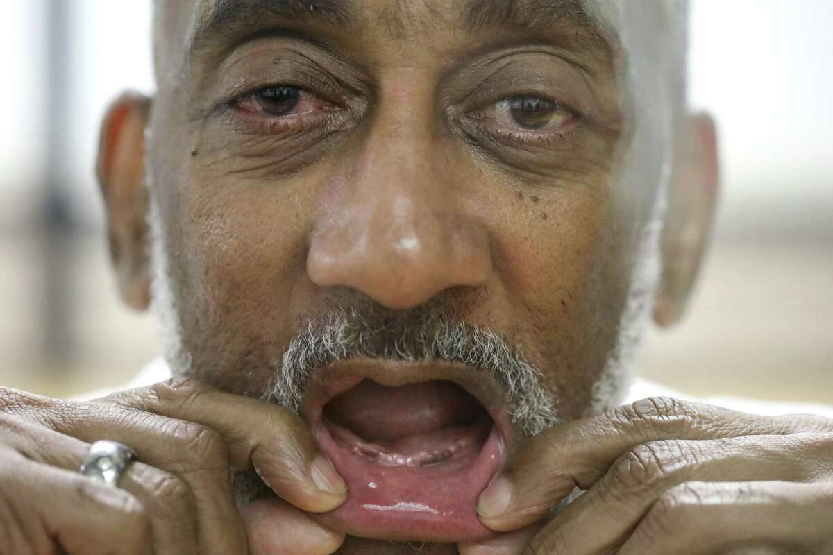 David Ford, an inmate at the Huntsville Unit who has had trouble getting dentures while in prison, shows his mouth while posing for a photo on Sept. 14, 2018 in Huntsville, Texas. Inmates without teeth in Texas are routinely denied dentures because state prison policy says chewing isn't a medical necessity and that they can eat blended food. The prison system is now in the process of getting Ford dentures.