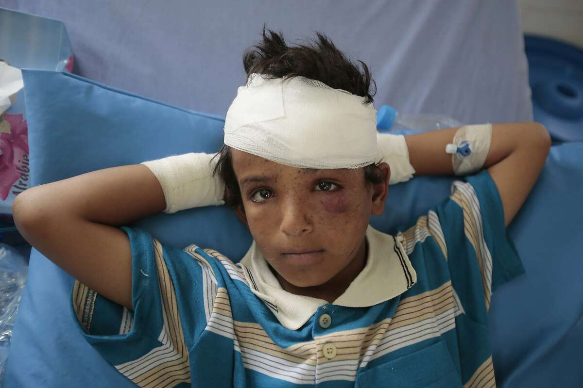 FILE - In this Aug. 12, 2018, file photo, a child injured in a deadly Saudi-led coalition airstrike on Thursday rests in a hospital in Saada, Yemen. The United Nations children's agency said Friday, Oct. 19, 2018 that Yemen's economic crisis and the relentless violence at a key Red Sea port city risks leaving millions of children and families without food, clean water and sanitation. (AP Photo/Hani Mohammed, File)