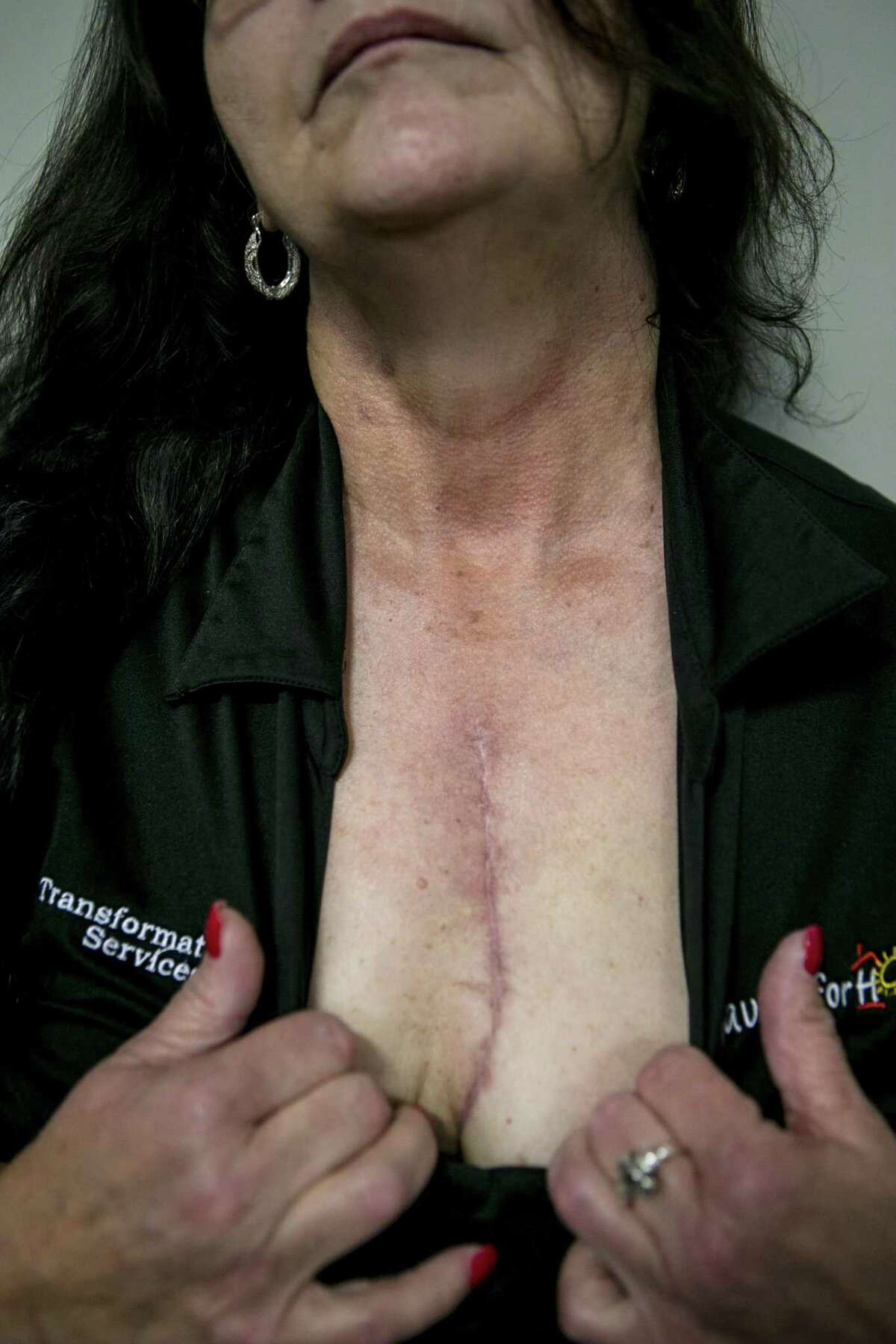 Carole Lewis shows the scar from the heart surgery she required after years of injecting methamphetamine. She's not ashamed of the scar - it's an outer sign of her determination to stay sober and off drugs.