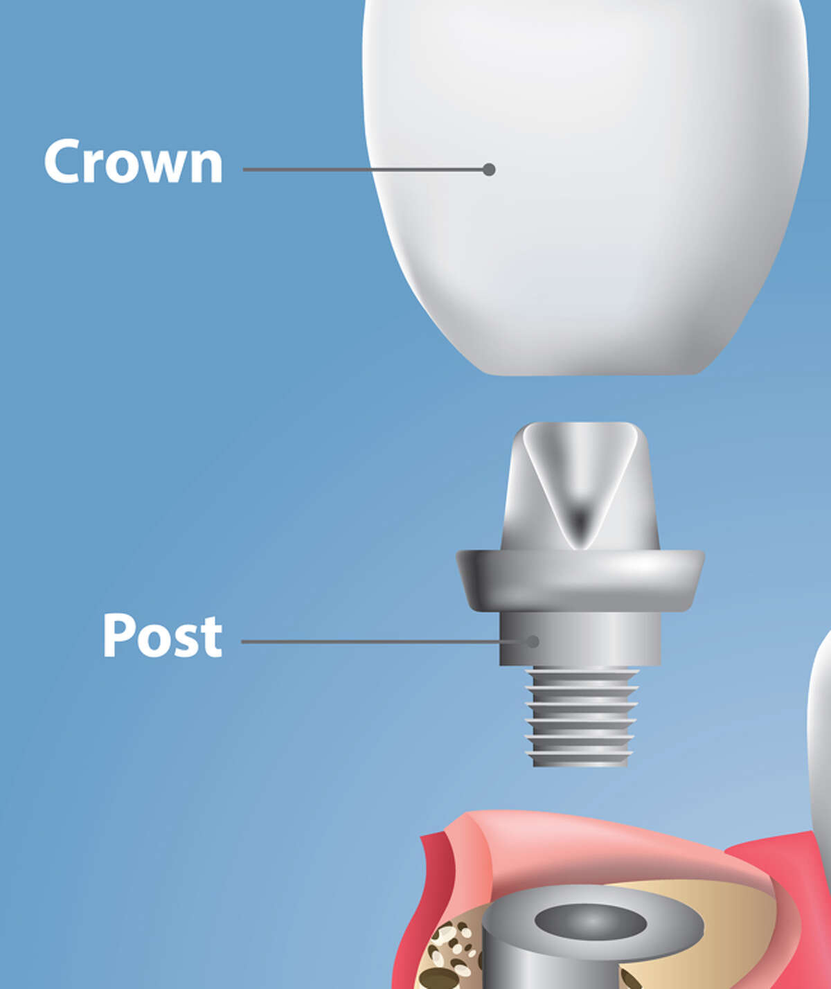 Although implants have a success rate of more than 95 percent, there is always a risk for complications and infection, including injury to the nerves, sinuses or nasal cavity. In some cases, the implant fails to fuse to the jawbone, or can break or crack.