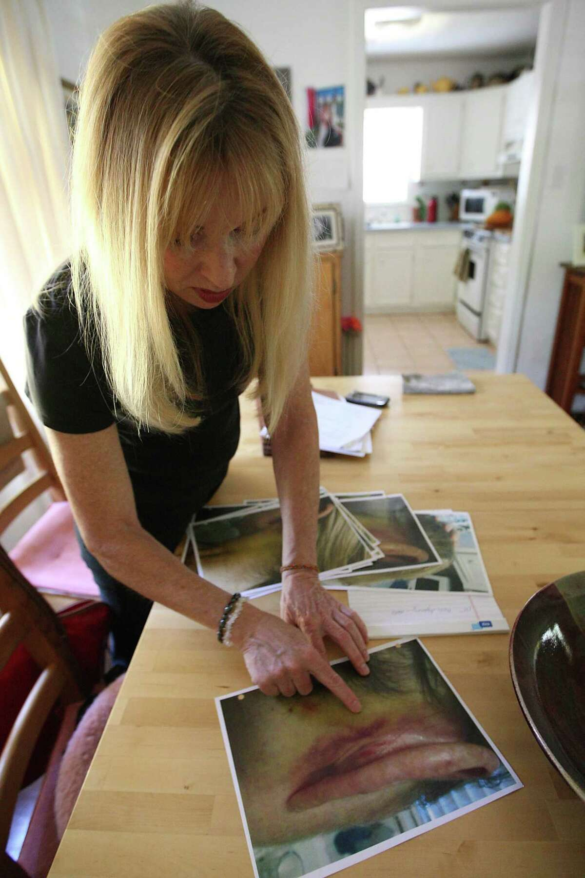 """Linda Geffin, a former senior assistant county attorney in Harris County, looks at photos taken of her in September 2011 after someone attacked her in her Houston home on April 19, 2012. Geffin was attacked and brutally beaten by an unknown assailant after spending three years as the county's lead enforcer of """"nuisance laws"""" - shutting down or evicting a string of rogue massage parlors, strip clubs, bars from 2009 to 2011. She eventually returned to work at the county, and now focuses on providing training to law enforcement and nonprofits in the areas of human and labor trafficking."""