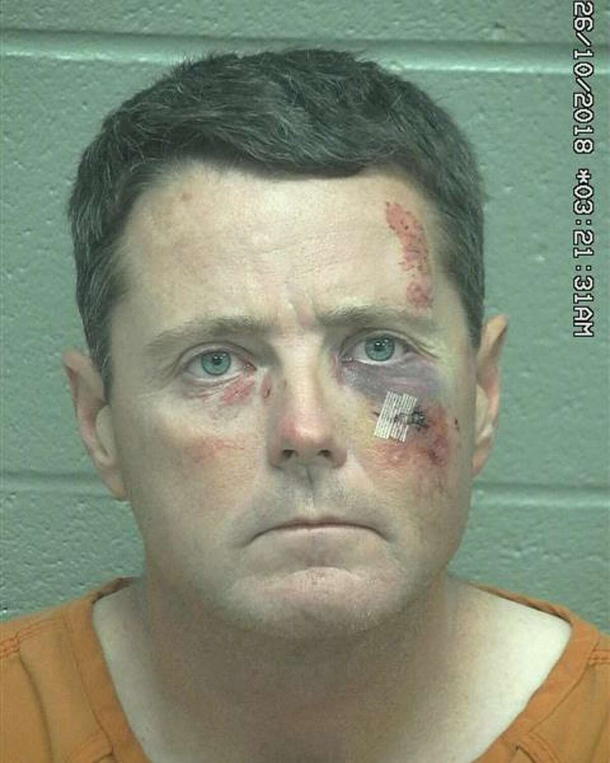 Rodney Shannon Mackie Ausmus, 42,was arrested Oct. 25 after he allegedly swung a shovel at a man, according to court documents.