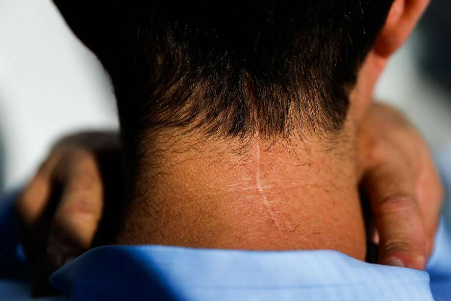 Tony Montoya, president of the S.F. police union, shows the scar on his head and neck from the brain surgery after he was diagnosed with a tumor. Photo: Gabrielle Lurie / The Chronicle
