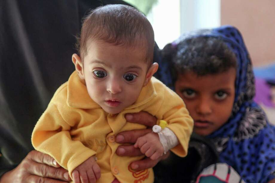 A Yemeni child suffering from malnutrition is seen being held by a woman at a treatment centre in a hospital in the country's third-city of Taiz. on November 21, 2018. - As many as 85,000 infants under the age of five may have died from starvation or disease since 2015 in war-ravaged Yemen, humanitarian organisation Save the Children said on November 21, basing its estimate on UN-compiled data, which has warned that up to 14 million people are at risk of famine in Yemen where Saudi-backed forces are battling Iran-aligned Huthi rebels. Photo: AHMAD AL-BASHA / AFP /Getty Images / AFP or licensors