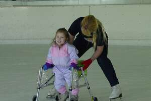 Photo of Cynthia Oyler, courtesy of Oyler family. Jane Wilhelm, a physical therapist with early childhood intervention program, helps a young Cynthia Oyler, who suffers from Spina Bifida, to take her first steps.