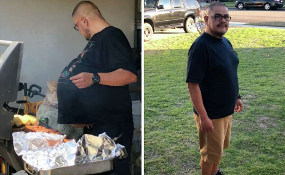 Hector Hernández, photographed before surgery, removed the cancerous mass of 77 pounds in July. Photo: Courtesy of Hector Hernandez / HSC News.